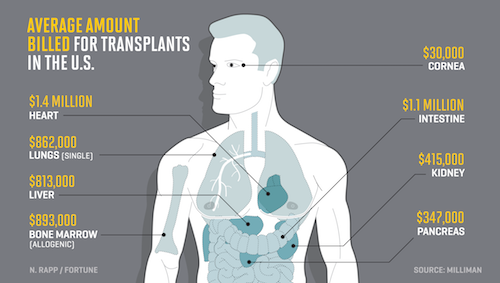 Organ transplant costs